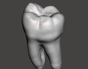 Mandibular left first molar biology 3D printable model