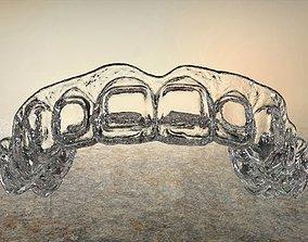 3D print model Digital Dental Bleaching Tray