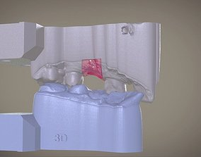 Digital Implant Model with Soft Tissue tech