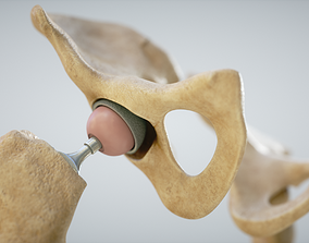 VR / AR ready Medical 3D Print Hip-Joint