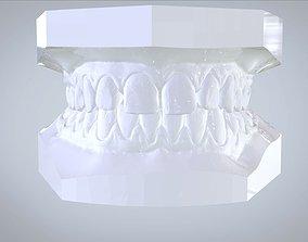 Orthodontic Planning Study Model