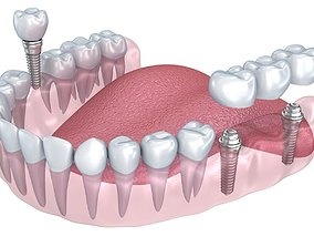 Human Lower teeth crown and dental implant 3D