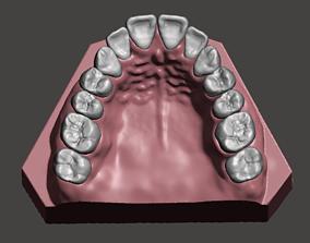 Maxillary dental model science