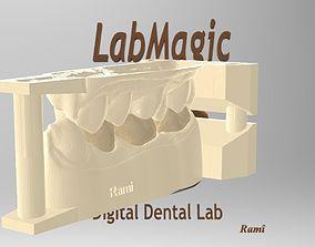 Digital Dental Model other
