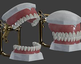 Dental Prosthesis 3D
