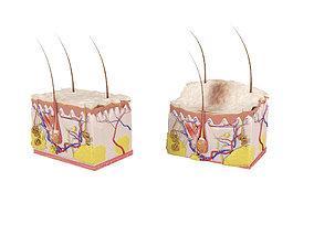 3D model Skin layers Epidermis dermis Injections