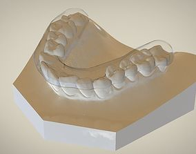Digital Flat Plane Splint Orthodontics 3D printable model